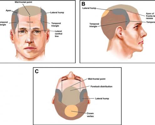 آناتومی، ژنتیک و فیزیولوژی از دست دادن مو