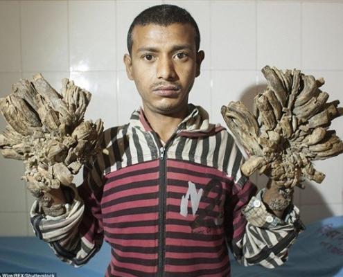 مردی که درخت شد در بنگلادش عمل شد