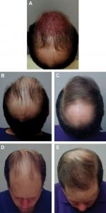 ارزیابی و برنامه ریزی کاشت موی سر