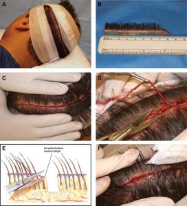 """روش های """"کاشت مو""""ی طبیعی از سیرتا پیاز + تصاویر"""